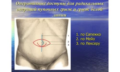 Грыжесечение пупочной грыжи по Мейо - наиболее распространенный и безопасный метод герниопластики ненатяжного типа