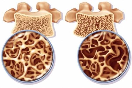 Регионарный остеопороз что это такое