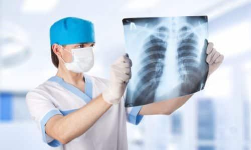 Для уточнения того, какие органы попали в грыжевой мешок и есть ли осложнения, проводится рентгенография