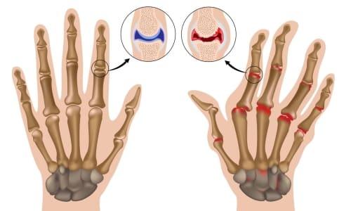 Значение АЦЦП в диагностике ревматоидного артрита