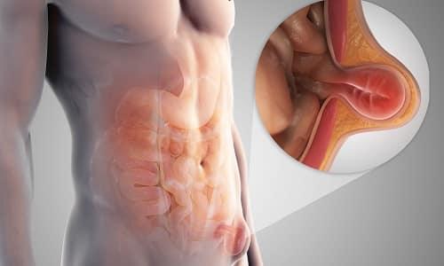 При грыже малых размеров происходит выпячивание большого сальника, в сложных случаях выпирают сальник, петли кишечника, иногда и тонкий кишечник