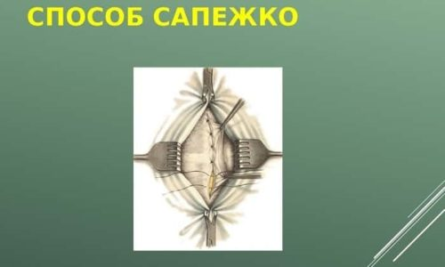 Операция может производиться стандартными способами: методами Сапежко или Мейо