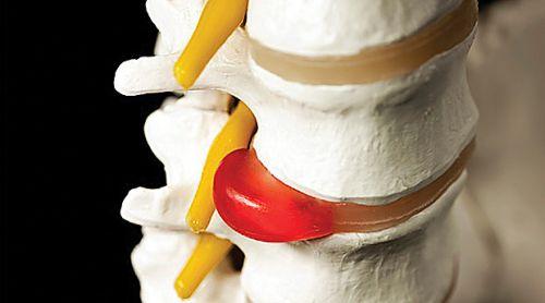 Что такое склерозированная грыжа позвоночника
