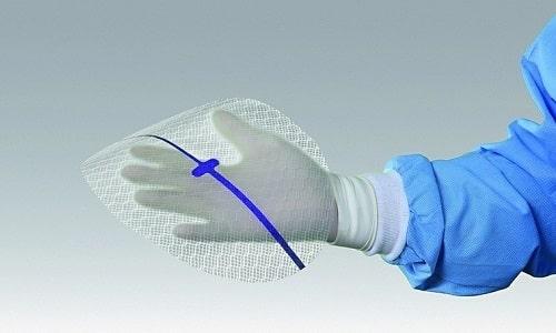 Использование при хирургическом вмешательстве медицинской сетки для грыжи позволит пациенту вернуться к комфортному для него ритму жизни в течение полугода