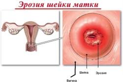 Противовоспалительные препараты при эрозии шейки матки