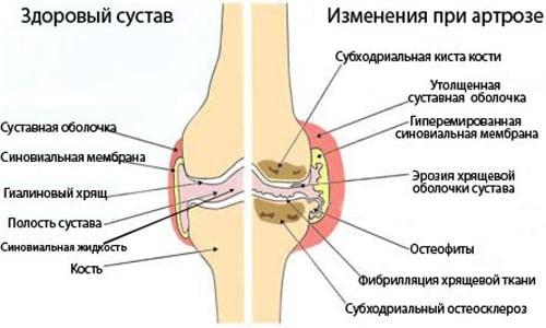 лечение артроза пальцев народные средства