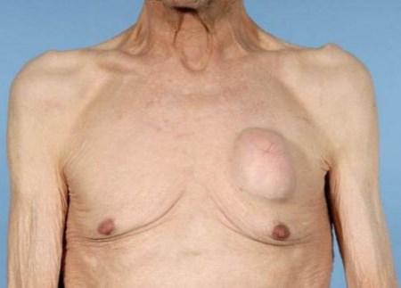 шишка на грудной клетке