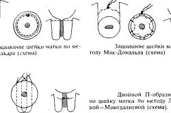 Варианты швов на шейке матки