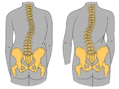 Симптомы сколиоза характеризуются фронтальным смещением позвоночной оси