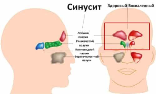 Воспалительныезаболевания