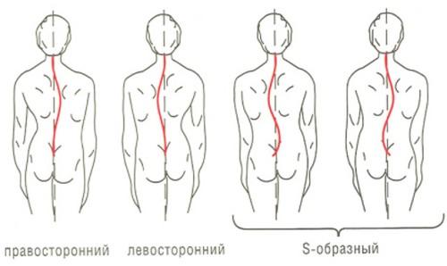 Упражнения при s образном сколиозе 1 степени