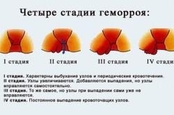 Описание четырех стадий геморроя