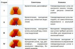 Описание симптомов геморроя на каждой стадии