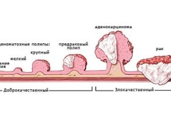 Полип - причина появления рака