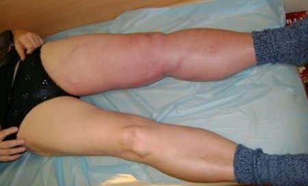 Болезненные признаки тромбофлебита