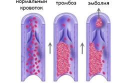 Тромбоэмболия - последствие геморроя
