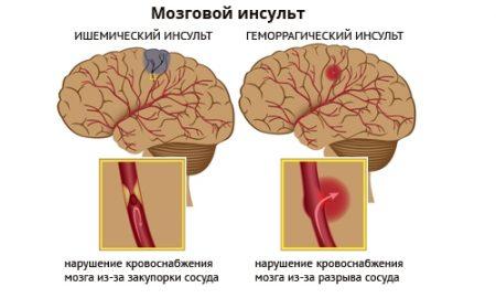 Причины нервного тика фото