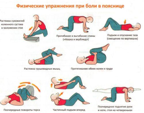 Какие физические упражнения полезны при межпозвоночной грыже фото