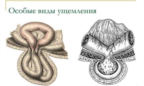 Тяжело диагностируется рихтеровское, или пристеночное, ущемление, это обусловлено тем, что в узкое кольцо попадает только небольшая часть стенки кишечной петли