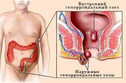 Виды геморроидальных узлов