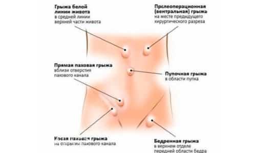 По анатомическому расположению грыжи делятся на паховые, грыжи спигелиевой линии, пупочные, диафрагмальные, тазовые