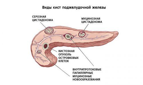 Иногда медики допускают ошибки и кисту именуют полипом. Под кистой именуется образование из жидкости, которое формируется из ткани данного органа и ограничивается своеобразной капсулой