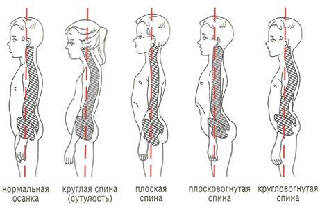 Виды нарушений физиологического лордоза позвоночника