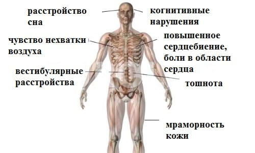 Симптомы головной боли при ВСД