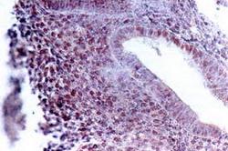 Железистая гипоплазия эндометрия