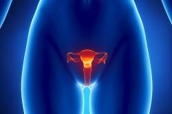 Воспаление репродуктивных органов - причина отсутствия овуляции